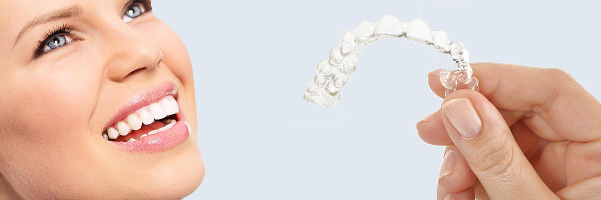 Montville 7 Things Parents Need to Know About Invisalign Teen